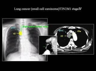 肺がん.jpg