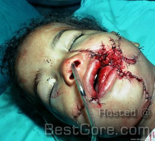 bestgore boy-face-torn-blast-undergoes-plastic-operation-.jpg