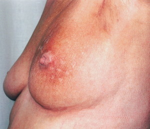mmk bloody nipple.jpg