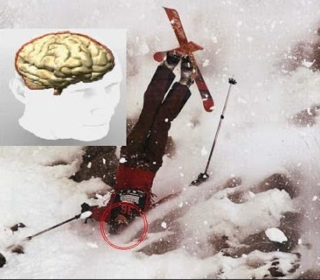 schumacher's ski accident photo.png