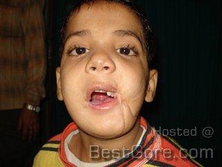 boy-face-torn-blast after plastic-operation.jpg