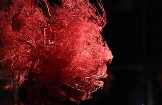 todaypic blood vessel in your face.jpg